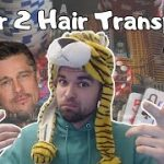 Poker to Hair Transplant   Ep. 2
